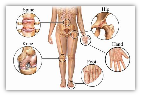 Osteoarthritis Treatment Doctors Texas - www.BestDoctorsNetwork.com