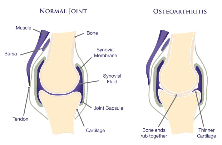 Best Doctors in Texas Treating Osteoarthritis